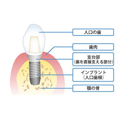 インプラント治療の取り組み方